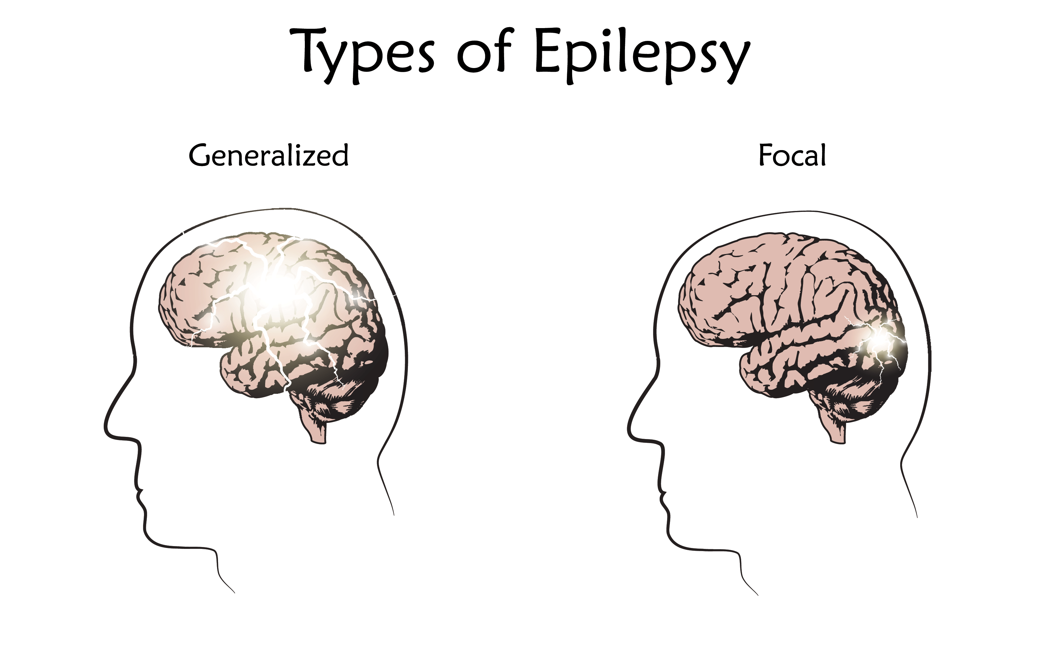 What are the Different Types of Seizures? - Epilepsy Queensland